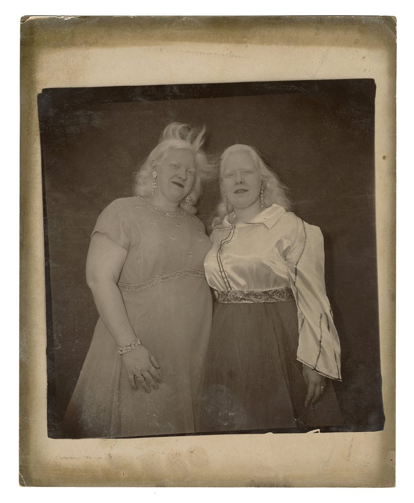 A closeup shot of Doreen and Sandra Reed, taken by Diane Arbus circa 1970 on the grounds of the sideshow where Sandra performed as a sword-swallower. Both women happen to be albinos.
